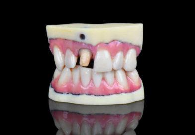J720 Dental, nuova stampante 3D per laboratori odontotecnici